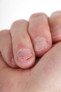 Grow long healthy nails with hypnotherapy